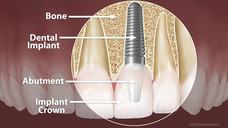 Single tooth implant option at Oral and Facial Surgery Center