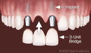 Multiple teeth implant option at Oral and Facial Surgery Center