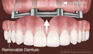 Implant-Supported Dentures at Oral and Facial Surgery Center