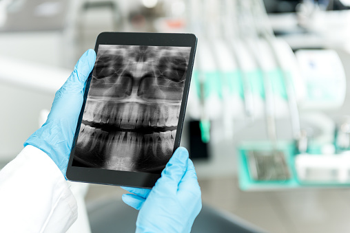 ipad showing dental technology in a dental office in Tallahassee, FL