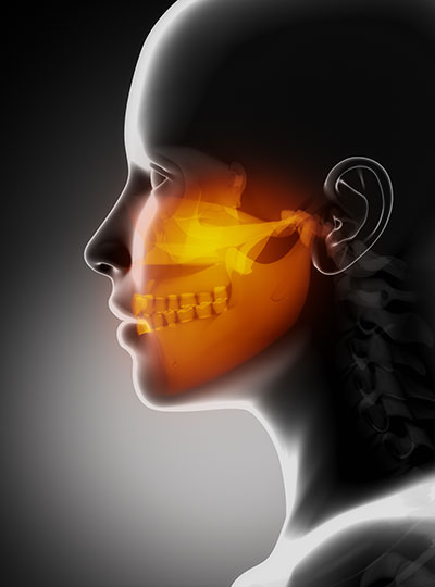 image of facial bones after a healthy bone graft