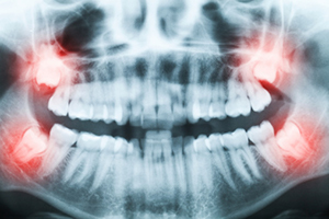 Impacted Wisdom Teeth at Oral and Facial Surgery Center, in Tallahassee, FL