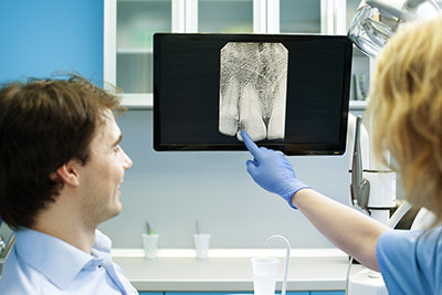 Digital X-rays at Oral and Facial Surgery Center, in Tallahassee, FL